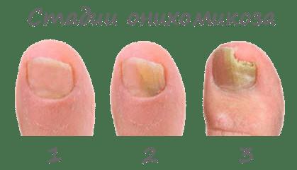 грибок ногтей стадии