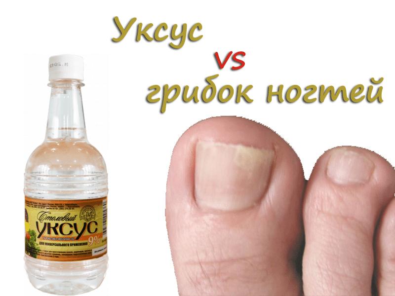 Народный способ лечения грибка ногтей уксусом
