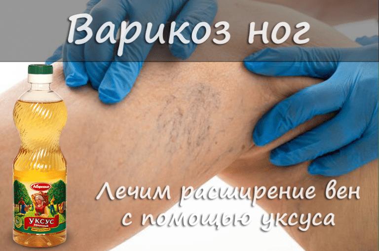 Рецепт от варикоза вен